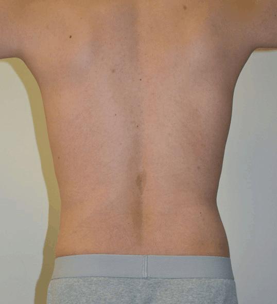 Body Contouring 11