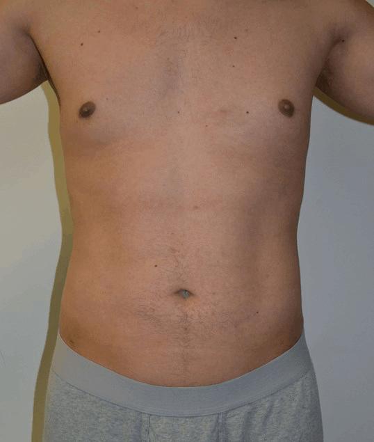 Body Contouring 7