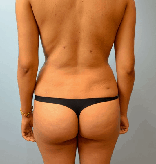 Body Contouring 6