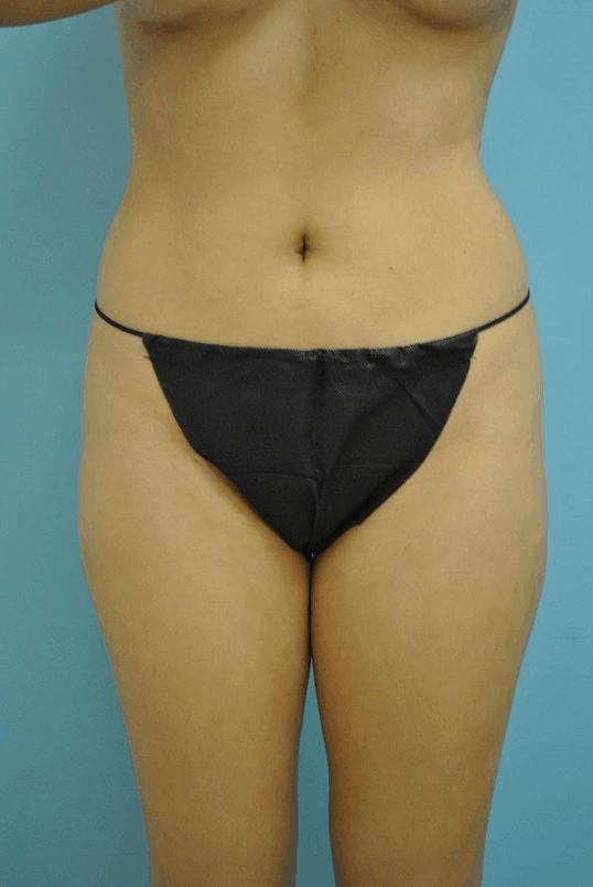 Body Contouring 5