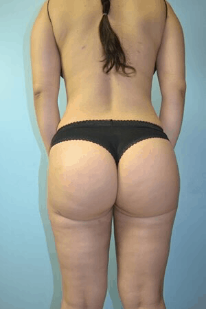 Body Contouring 2